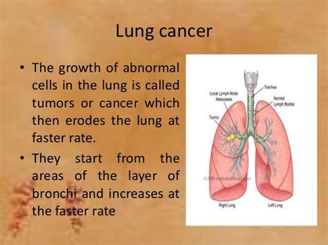 el cancer symptoms picture 6