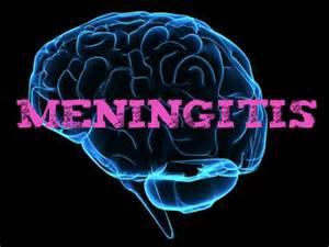 bacterial mengingitis picture 7