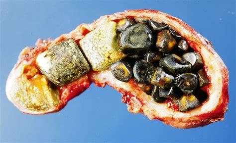 gall bladder hydrangea picture 10