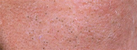 dermatologist advice for acne care picture 11