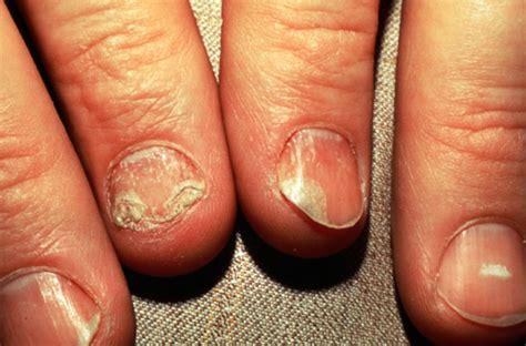 wart removal cream mercury drug picture 9
