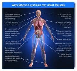 multiple sclerosis and gastrointestinal disorder picture 15