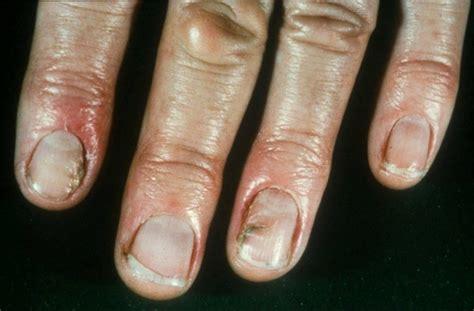 candida prostatitis picture 6