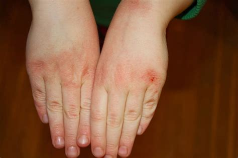 cracked skin on hands picture 9