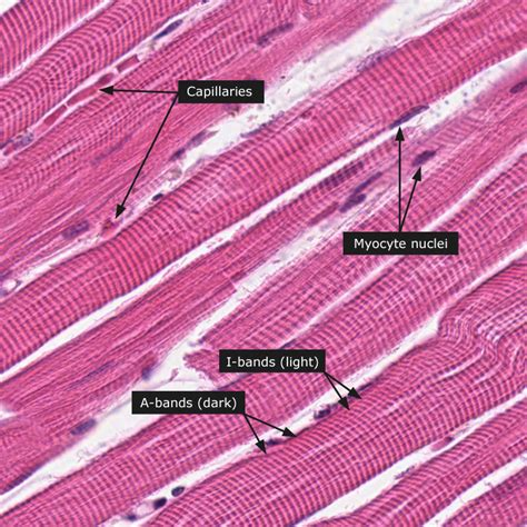 are smooth muscle multinucleated picture 13
