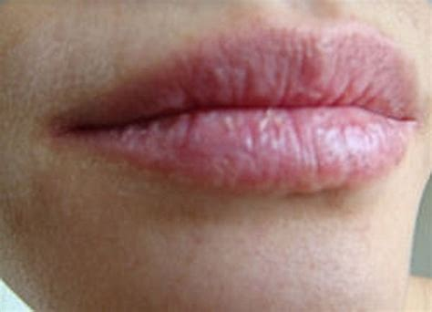 what to do about dry chapped lips picture 2