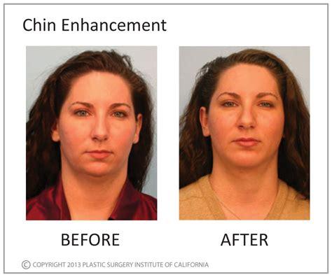 plastic surgery male enhancement picture 10