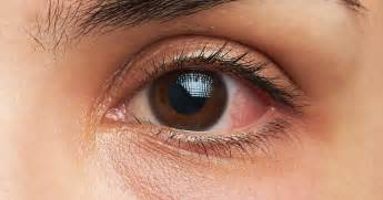 eye bacterial infections picture 1