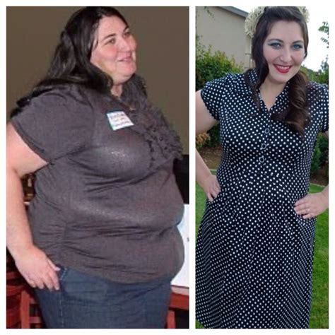 will gastric byp work if i'm weight loss picture 11