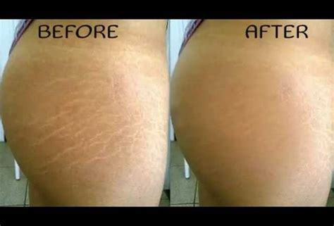 will tanning make stretch marks worse picture 9