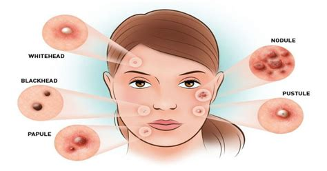 hormones for acne picture 1