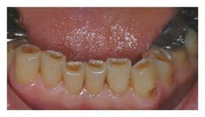 dental erosion & h whitening picture 18