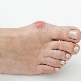 foot problems sore toe joint picture 13
