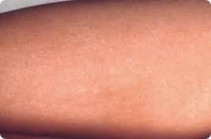rash around surgical scar picture 6