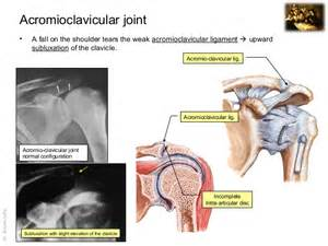 acromio-clavicular joint picture 18
