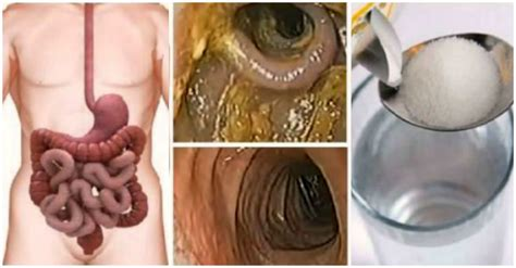 Colon cleansing recipes picture 13