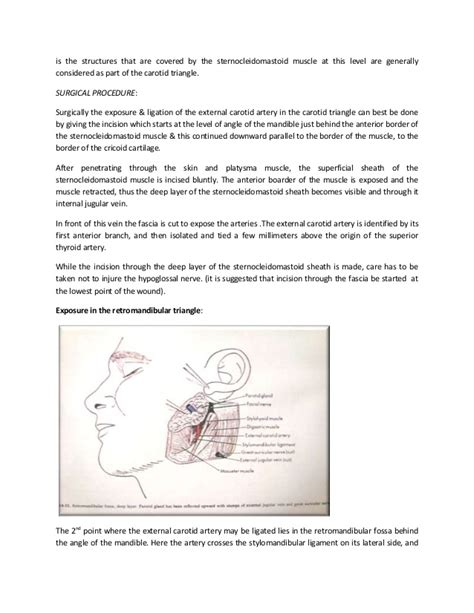 exposure and ligation of maxillary h picture 7