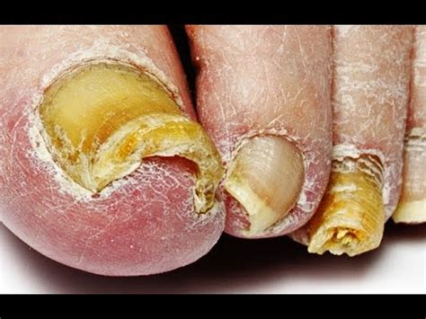 fungus under toe nails picture 9