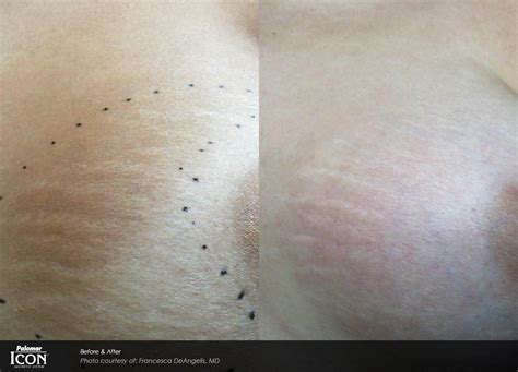 new jersey stretch mark laser removal picture 8