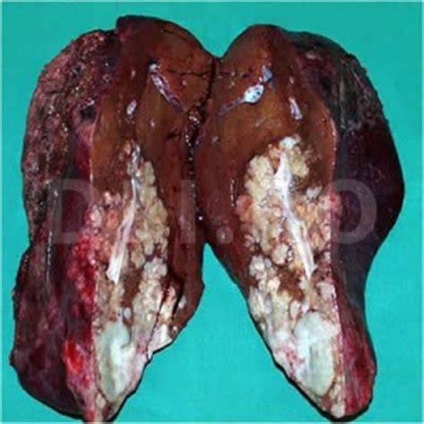 angiosarcoma of the liver picture 18