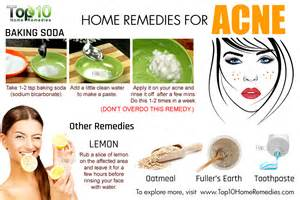 home remedies for acne picture 5