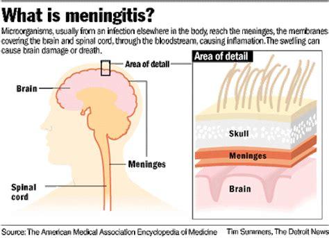 meningitis and herpes picture 5