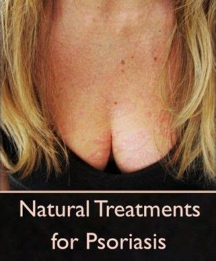 alopecia treatment in perth - herbal supplement picture 7