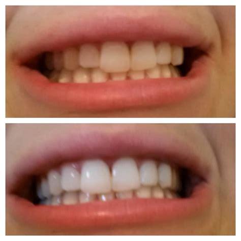 california whiten teeth picture 19