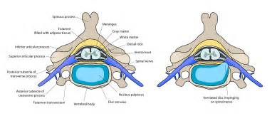 disc pain relief picture 14