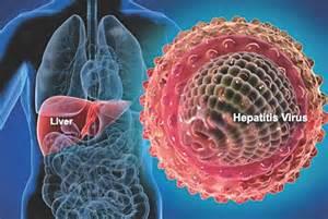 symptoms liver disease picture 7