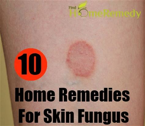 home remedy for yeast infections picture 3