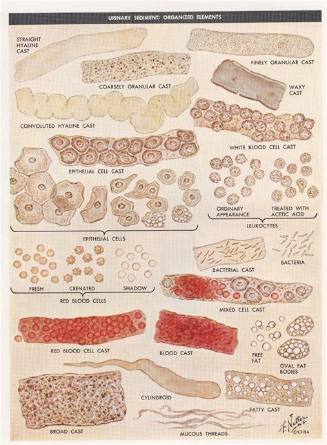 sedement in bladder picture 9