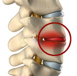 degenerative disc joint picture 17
