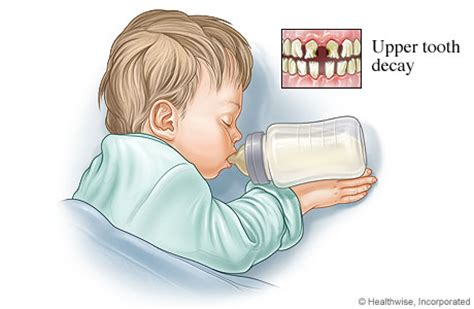 the tooth milk h picture 15