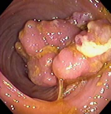 colon polyps picture 1