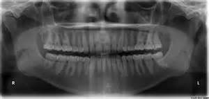 cavity cover for teeth picture 6