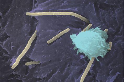cinnamon kills e coli bacteria in bladder picture 1