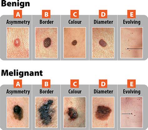 dermatologist skin of color picture 15