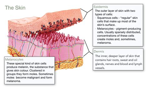 stages of skin cancer picture 6