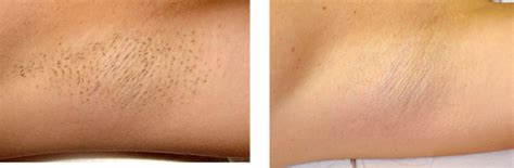 africa american lazer hair removal, houston, tx picture 7