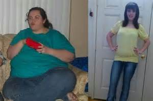 massive weight loss photos picture 2