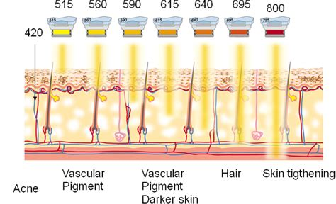 pulsed light therapy and skin picture 3