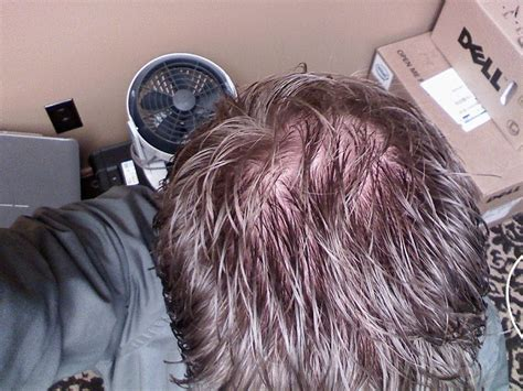 a.r.t. hairloss picture 3