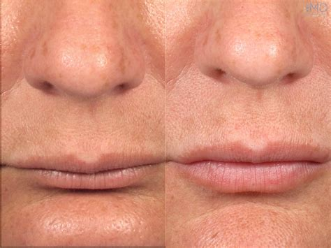 restylane for lips picture 1