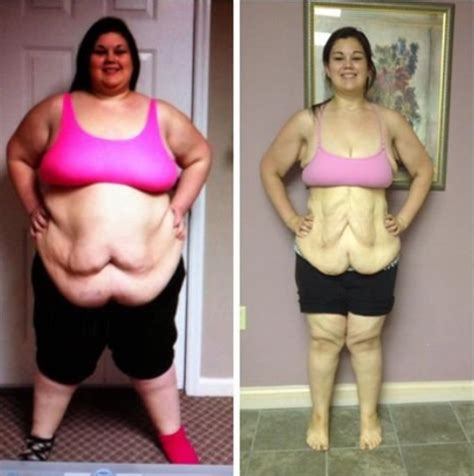 plastic surgery after weight loss picture 2