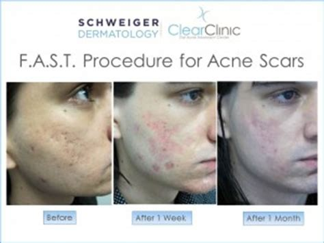 skin clear acne and laser center picture 3