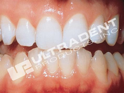 how to whiten teeth at home picture 6