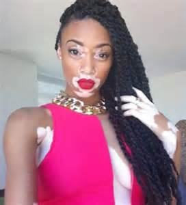 skin disorders in black people picture 2