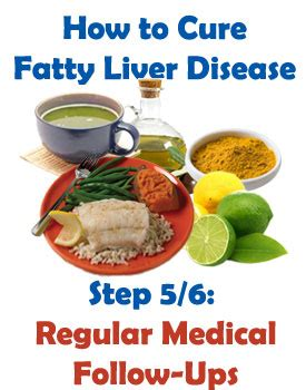 fatty liver exercise picture 13