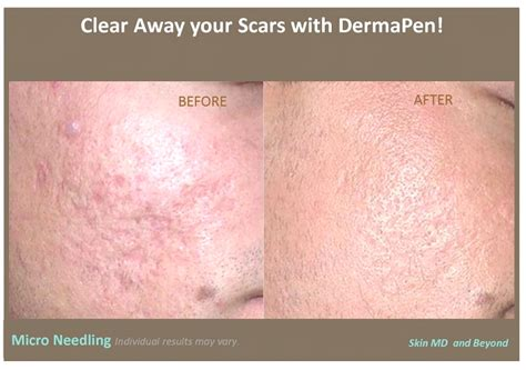 can you have a shower after dermapen treatment picture 5